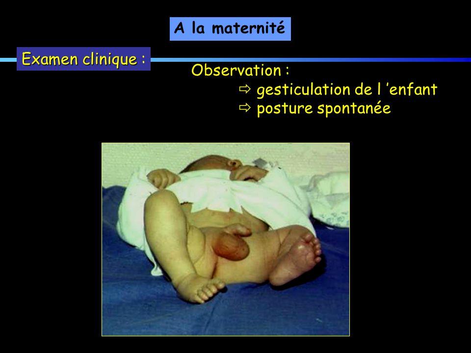 Observation : gesticulation de l enfant posture spontanée A la maternité Examen clinique Examen clinique :