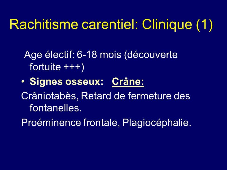 Rachitisme carentiel: Clinique (1) Age électif: 6-18 mois (découverte fortuite +++) Signes osseux:Crâne: Crâniotabès, Retard de fermeture des fontanel