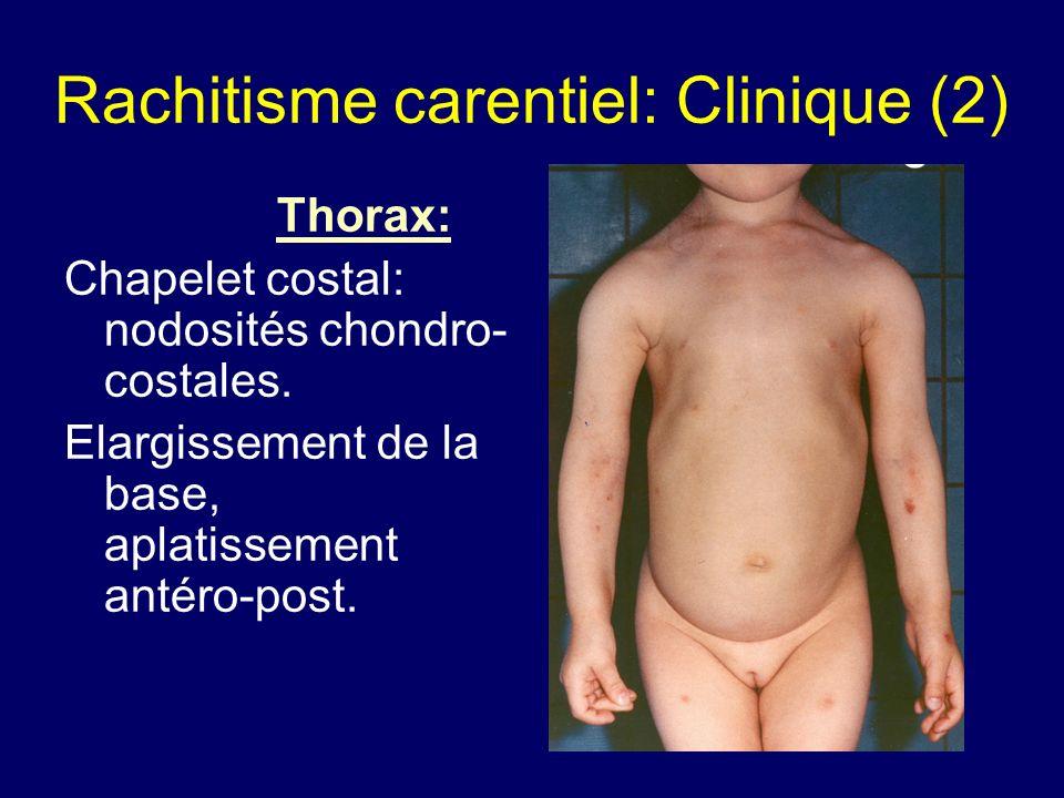 Rachitisme carentiel: Clinique (2) Thorax: Chapelet costal: nodosités chondro- costales. Elargissement de la base, aplatissement antéro-post.