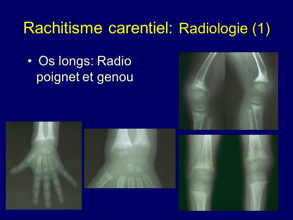 Rachitisme carentiel: Radiologie (1) Os longs: Radio poignet et genou