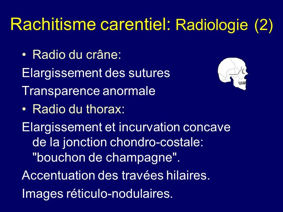 Rachitisme carentiel: Radiologie (2) Radio du crâne: Elargissement des sutures Transparence anormale Radio du thorax: Elargissement et incurvation con