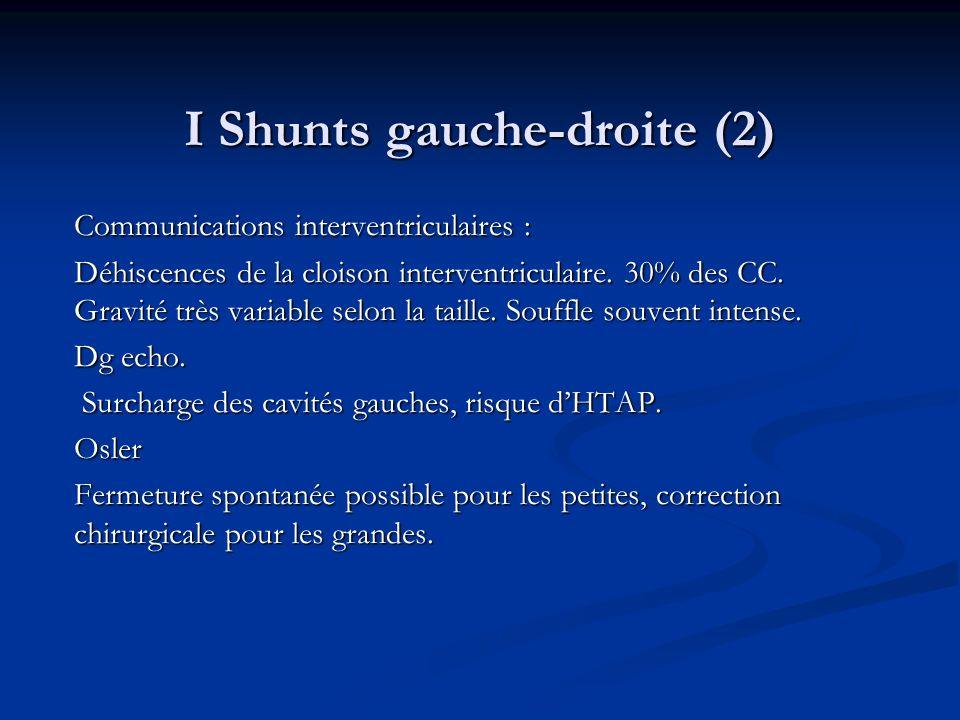 I Shunts gauche-droite (2) Communications interventriculaires : Déhiscences de la cloison interventriculaire. 30% des CC. Gravité très variable selon