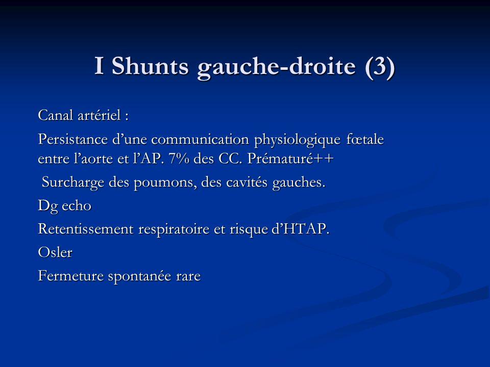 I Shunts gauche-droite (3) Canal artériel : Persistance dune communication physiologique fœtale entre laorte et lAP. 7% des CC. Prématuré++ Surcharge