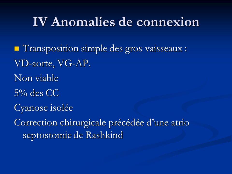 IV Anomalies de connexion Transposition simple des gros vaisseaux : Transposition simple des gros vaisseaux : VD-aorte, VG-AP. Non viable 5% des CC Cy