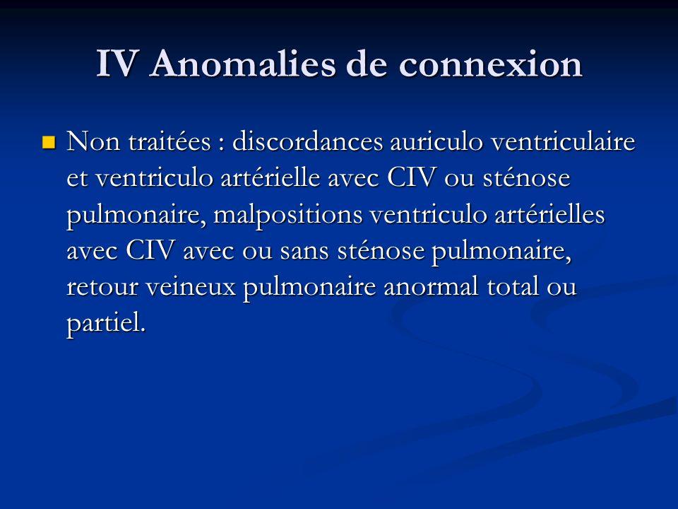 IV Anomalies de connexion Non traitées : discordances auriculo ventriculaire et ventriculo artérielle avec CIV ou sténose pulmonaire, malpositions ven