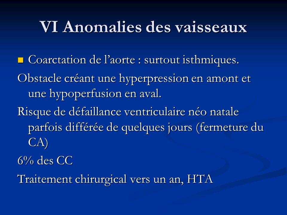 VI Anomalies des vaisseaux Coarctation de laorte : surtout isthmiques. Coarctation de laorte : surtout isthmiques. Obstacle créant une hyperpression e