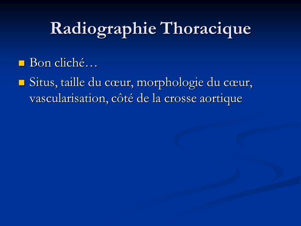 Radiographie Thoracique Bon cliché… Bon cliché… Situs, taille du cœur, morphologie du cœur, vascularisation, côté de la crosse aortique Situs, taille