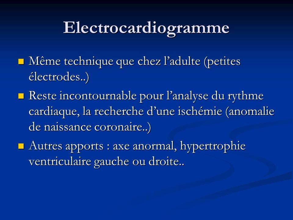 Electrocardiogramme Même technique que chez ladulte (petites électrodes..) Même technique que chez ladulte (petites électrodes..) Reste incontournable