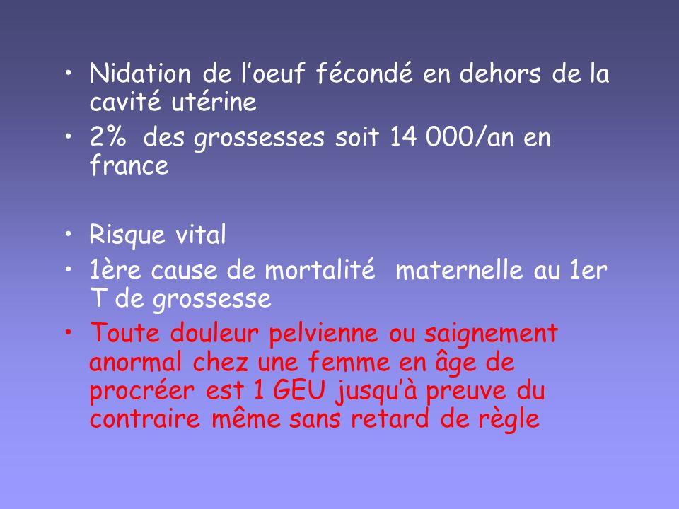 Nidation de loeuf fécondé en dehors de la cavité utérine 2% des grossesses soit 14 000/an en france Risque vital 1ère cause de mortalité maternelle au