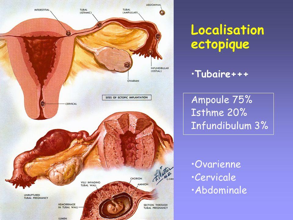 Localisation ectopique Tubaire+++ Ampoule 75% Isthme 20% Infundibulum 3% Ovarienne Cervicale Abdominale