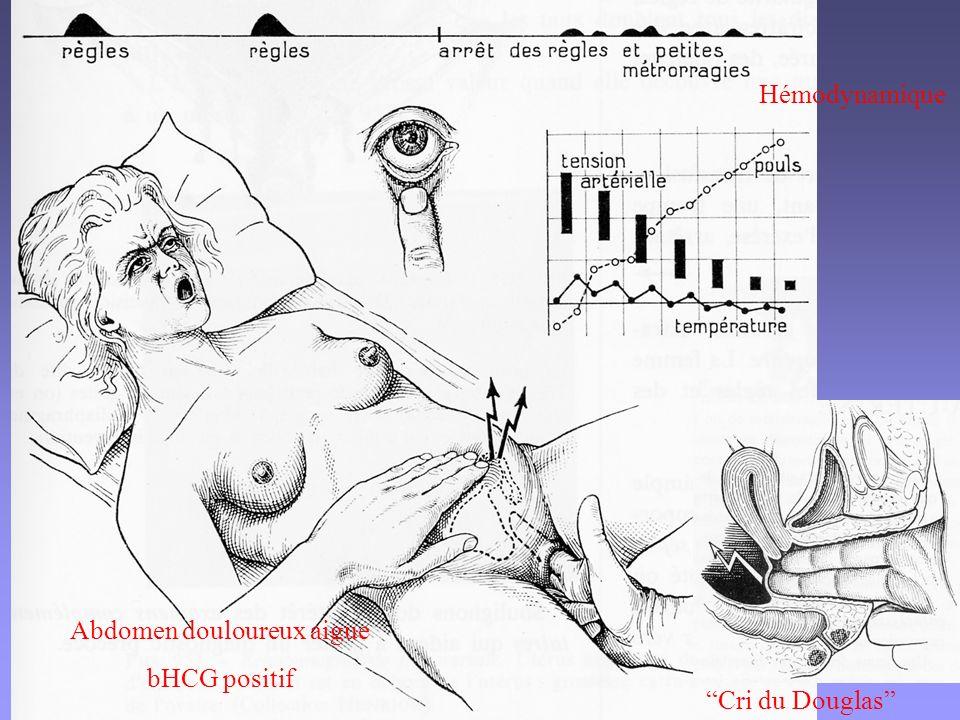 Hémodynamique Abdomen douloureux aigue bHCG positif Cri du Douglas