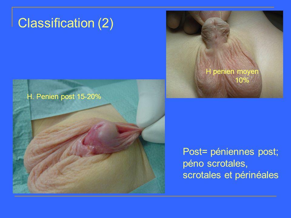 Classification (2) H penien moyen 10% H. Penien post 15-20% Post= péniennes post; péno scrotales, scrotales et périnéales