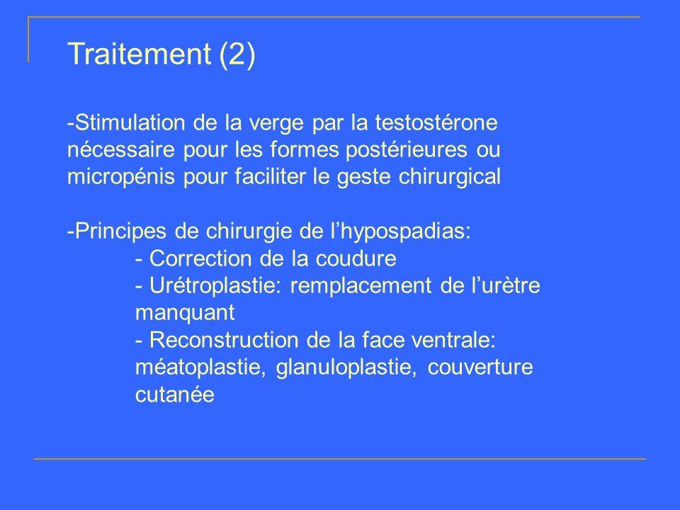 Traitement (2) -Stimulation de la verge par la testostérone nécessaire pour les formes postérieures ou micropénis pour faciliter le geste chirurgical