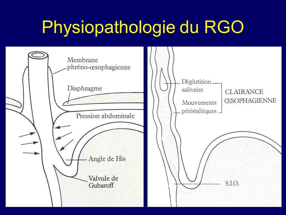Physiopathologie du RGO
