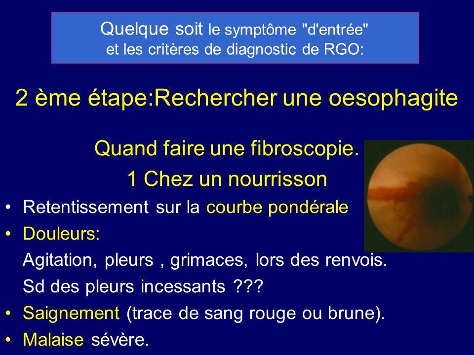 2 ème étape:Rechercher une oesophagite Quand faire une fibroscopie. 1 Chez un nourrisson Retentissement sur la courbe pondérale Douleurs: Agitation, p