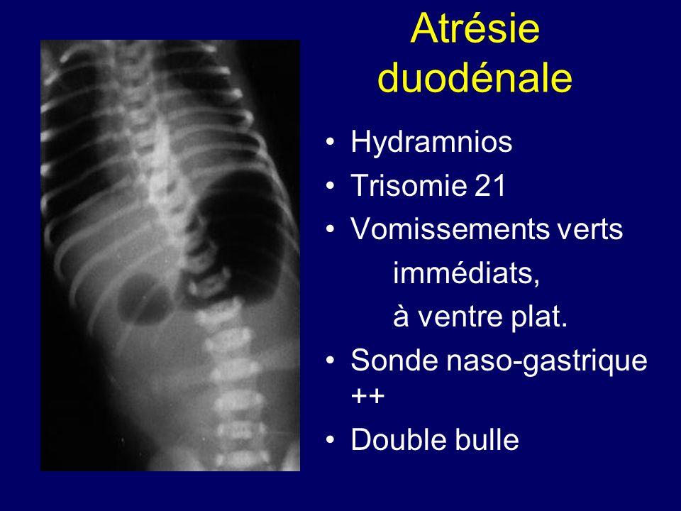 Atrésie duodénale Hydramnios Trisomie 21 Vomissements verts immédiats, à ventre plat. Sonde naso-gastrique ++ Double bulle