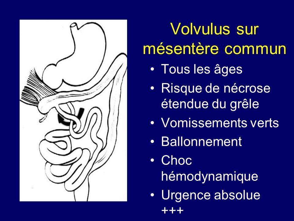 Volvulus sur mésentère commun Tous les âges Risque de nécrose étendue du grêle Vomissements verts Ballonnement Choc hémodynamique Urgence absolue +++