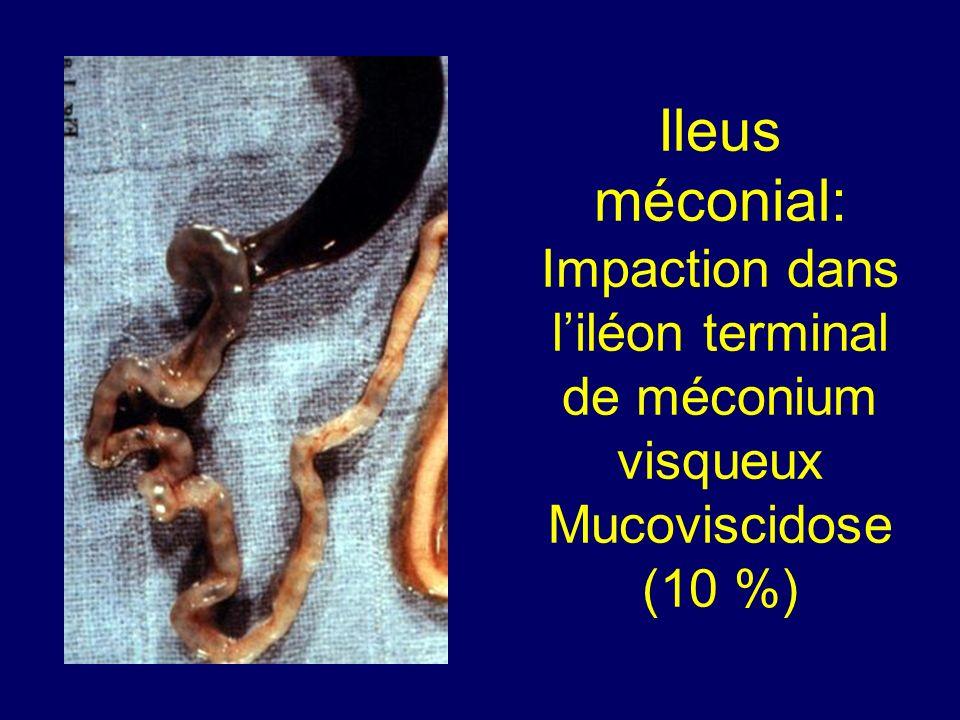 Ileus méconial: Impaction dans liléon terminal de méconium visqueux Mucoviscidose (10 %)