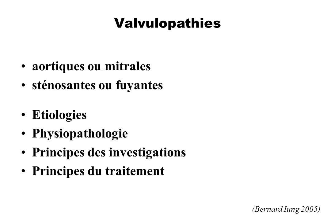Valvulopathies aortiques ou mitrales sténosantes ou fuyantes Etiologies Physiopathologie Principes des investigations Principes du traitement (Bernard