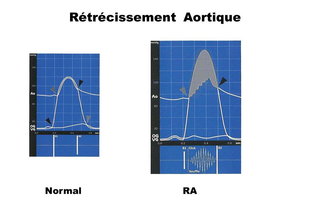 Rétrécissement Aortique Normal RA
