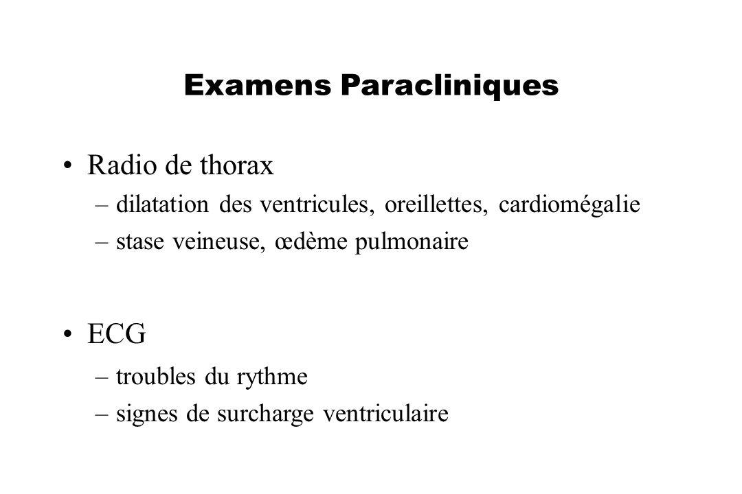 Examens Paracliniques Radio de thorax –dilatation des ventricules, oreillettes, cardiomégalie –stase veineuse, œdème pulmonaire ECG –troubles du rythm