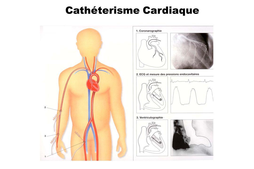 Cathéterisme Cardiaque