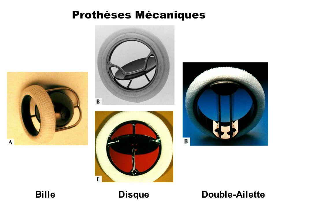 Prothèses Mécaniques BilleDisqueDouble-Ailette