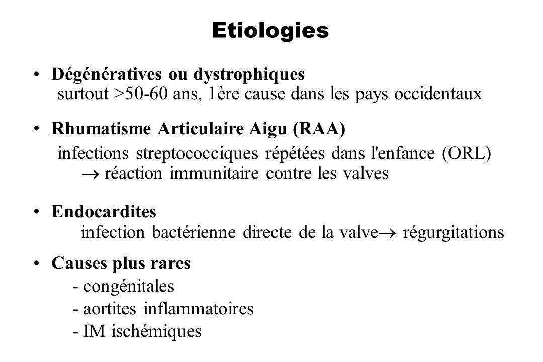 Etiologies Dégénératives ou dystrophiques surtout >50-60 ans, 1ère cause dans les pays occidentaux Rhumatisme Articulaire Aigu (RAA) infections strept