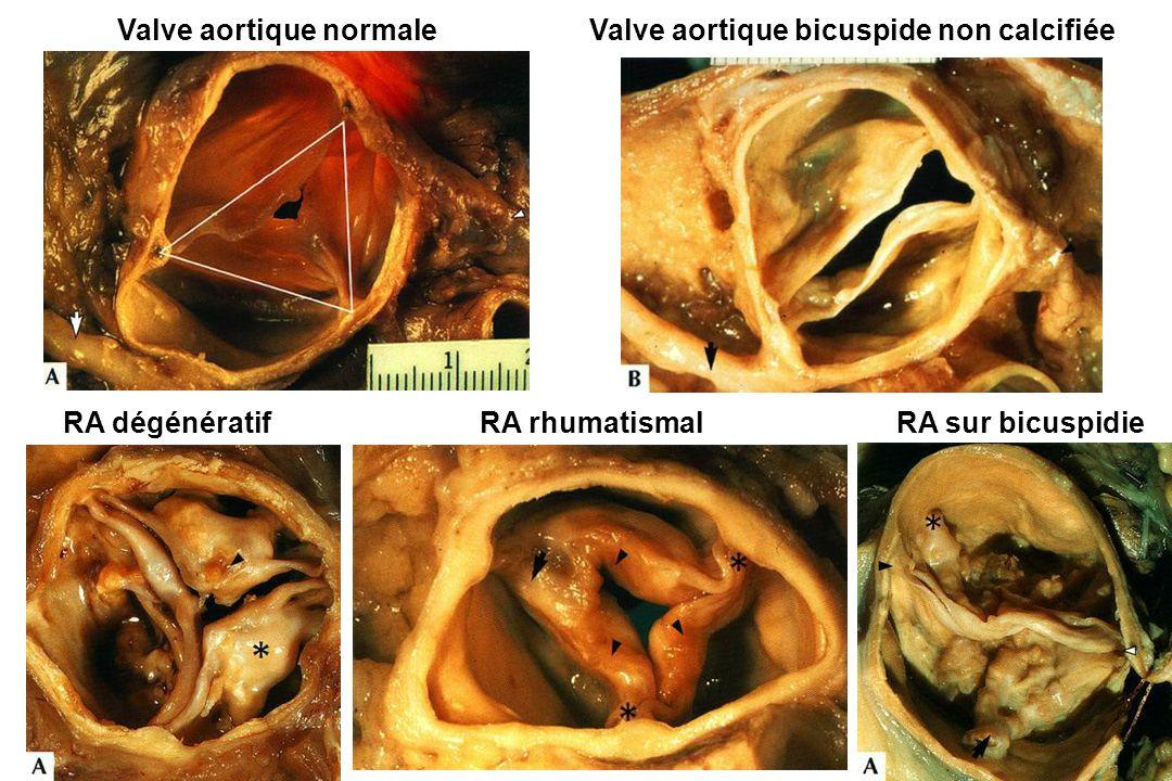 Valve aortique normale Valve aortique bicuspide non calcifiée RA dégénératif RA rhumatismalRA sur bicuspidie