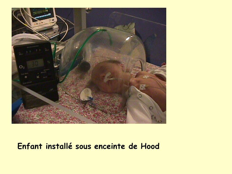 Enfants ventilés par une CPAP nasale