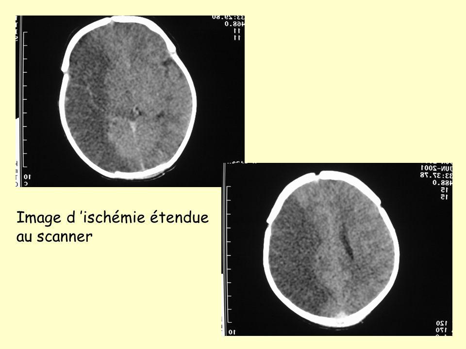 Image d ischémie étendue au scanner