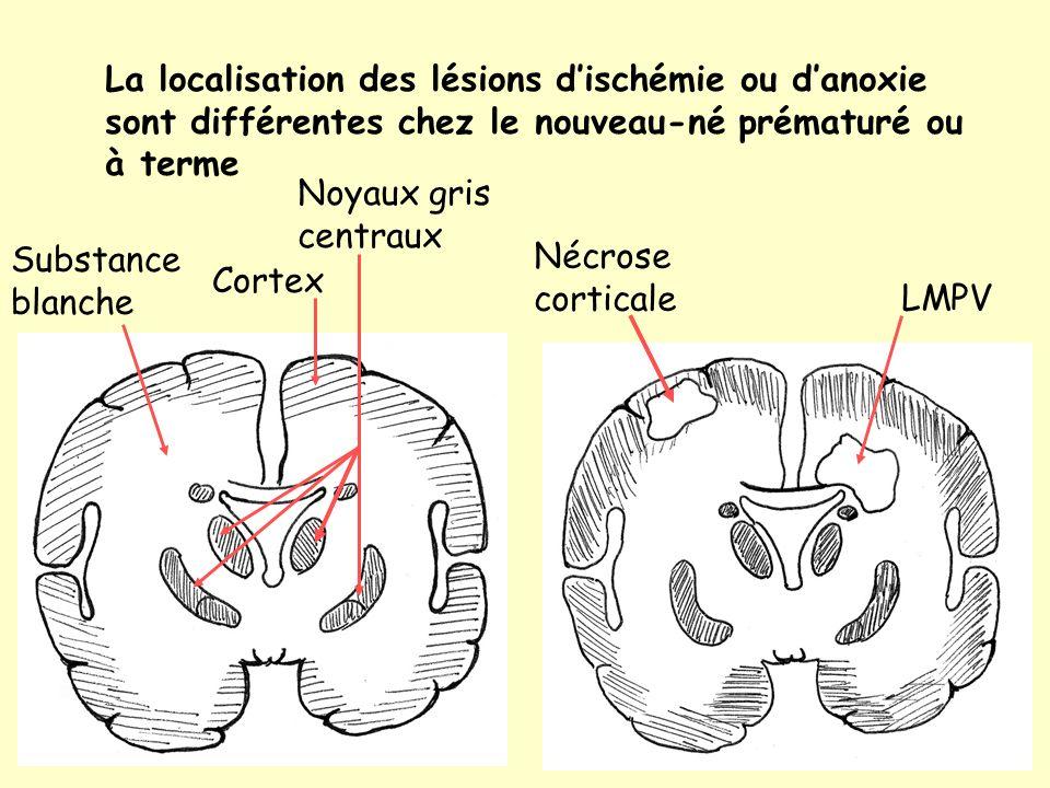 La localisation des lésions dischémie ou danoxie sont différentes chez le nouveau-né prématuré ou à terme LMPV Nécrose corticale Substance blanche Cortex Noyaux gris centraux