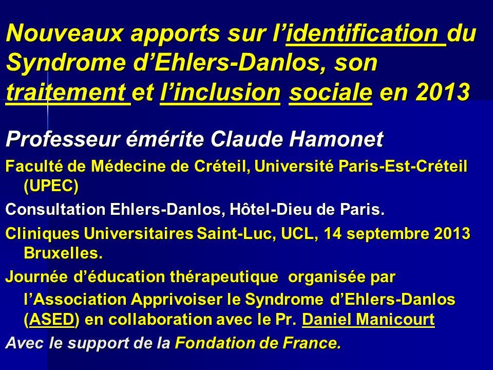 Nouveaux apports sur lidentification du Syndrome dEhlers-Danlos, son et linclusion sociale en 2013 Nouveaux apports sur lidentification du Syndrome dE