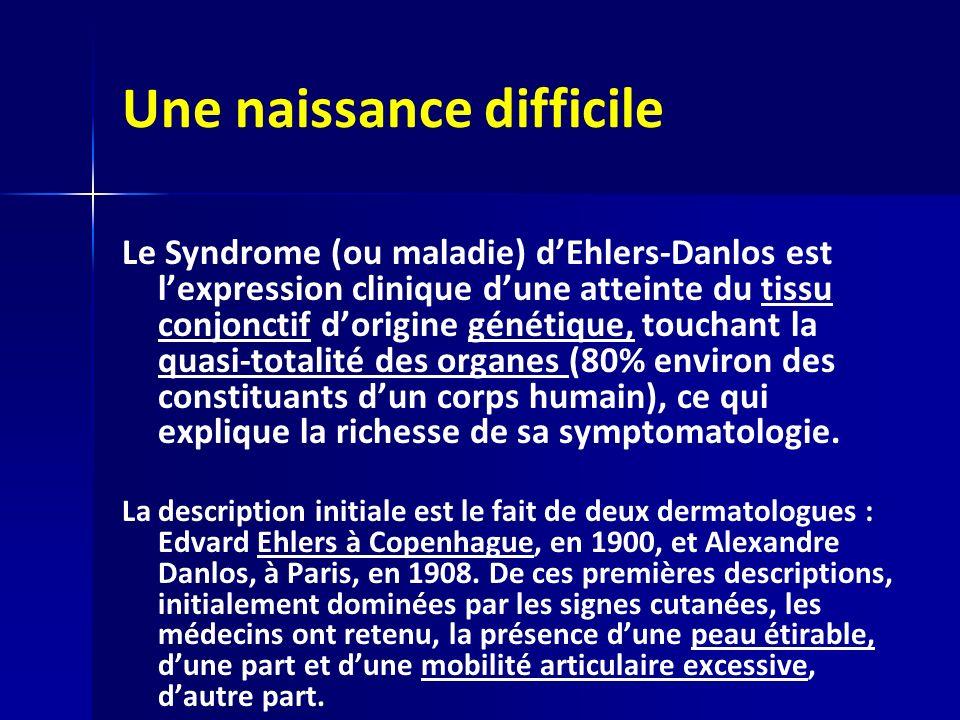 Une naissance difficile Le Syndrome (ou maladie) dEhlers-Danlos est lexpression clinique dune atteinte du tissu conjonctif dorigine génétique, touchant la quasi-totalité des organes (80% environ des constituants dun corps humain), ce qui explique la richesse de sa symptomatologie.