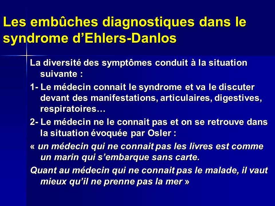 Les embûches diagnostiques dans le syndrome dEhlers-Danlos La diversité des symptômes conduit à la situation suivante : 1- Le médecin connait le syndr