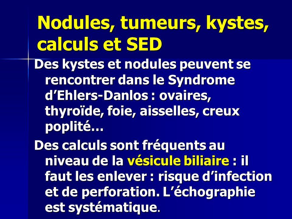 Nodules, tumeurs, kystes, calculs et SED Des kystes et nodules peuvent se rencontrer dans le Syndrome dEhlers-Danlos : ovaires, thyroïde, foie, aissel