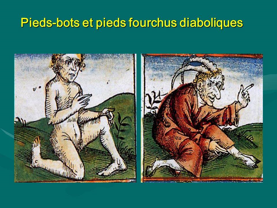 Pieds-bots et pieds fourchus diaboliques