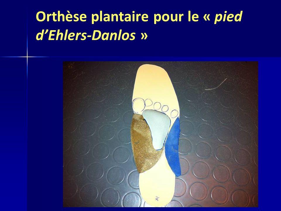 Orthèse plantaire pour le « pied dEhlers-Danlos »