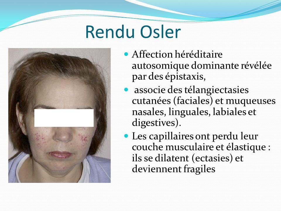 Rendu Osler Affection héréditaire autosomique dominante révélée par des épistaxis, associe des télangiectasies cutanées (faciales) et muqueuses nasale