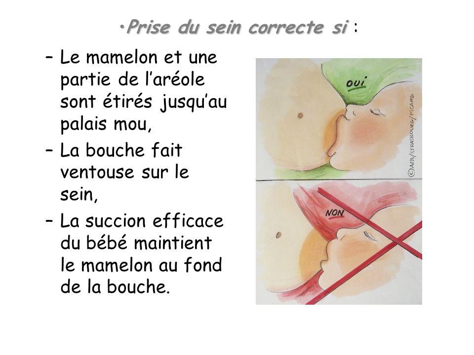 –Le mamelon et une partie de laréole sont étirés jusquau palais mou, –La bouche fait ventouse sur le sein, –La succion efficace du bébé maintient le m