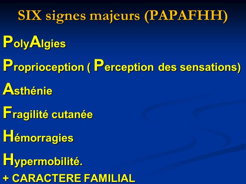 SIX signes majeurs (PAPAFHH) P oly A lgies P roprioception ( P erception des sensations) A sthénie F ragilité cutanée H émorragies H ypermobilité. + C