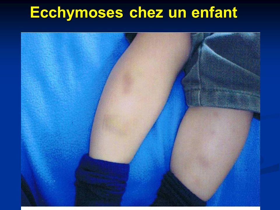 Ecchymoses chez un enfant