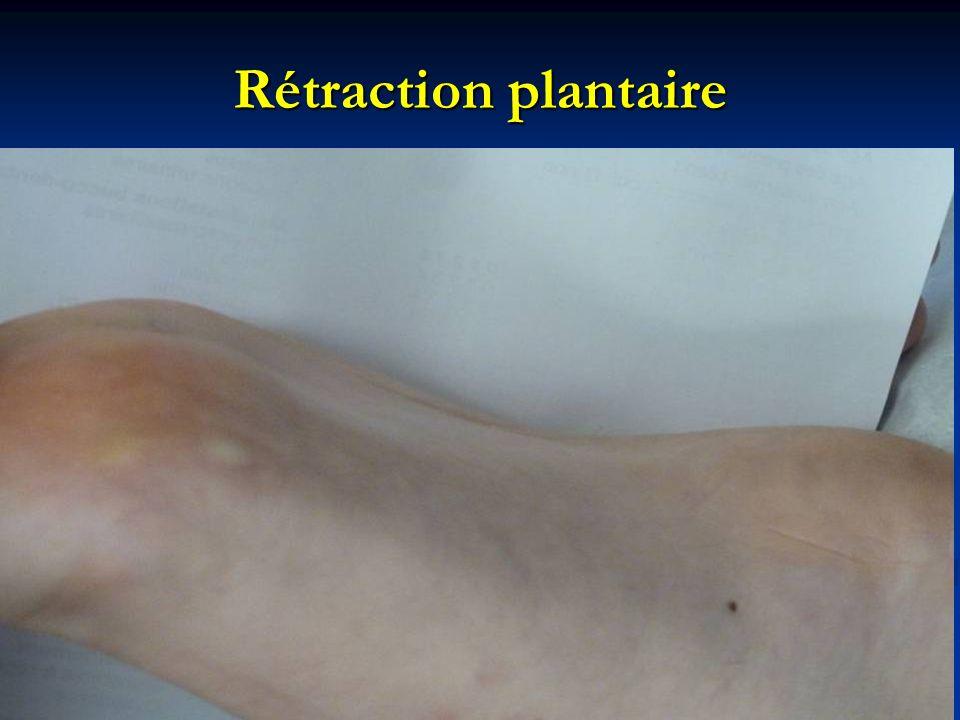 Rétraction plantaire