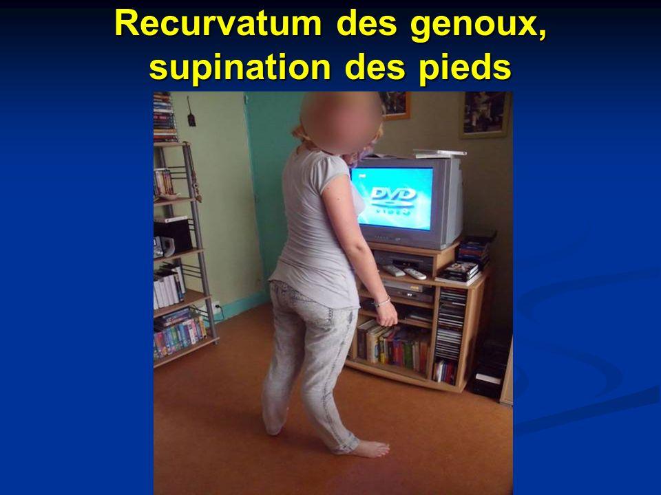 Recurvatum des genoux, supination des pieds
