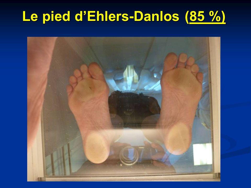 Le pied dEhlers-Danlos (85 %)