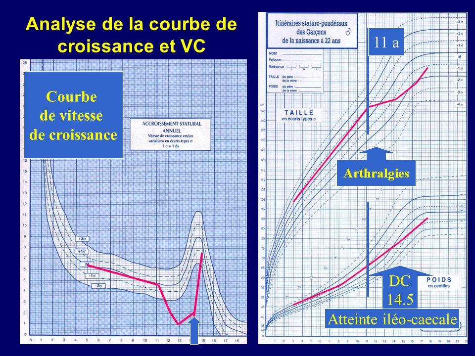 DC 14.5 Arthralgies Atteinte iléo-caecale 11 a Courbe de vitesse de croissance Analyse de la courbe de croissance et VC