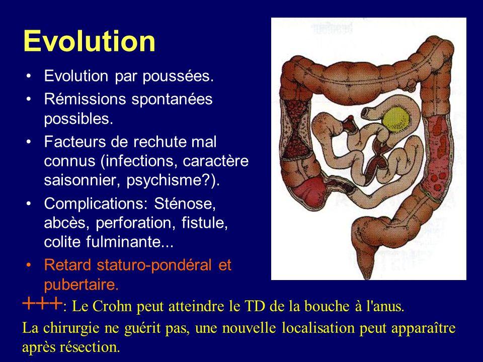 Evolution Evolution par poussées. Rémissions spontanées possibles. Facteurs de rechute mal connus (infections, caractère saisonnier, psychisme?). Comp