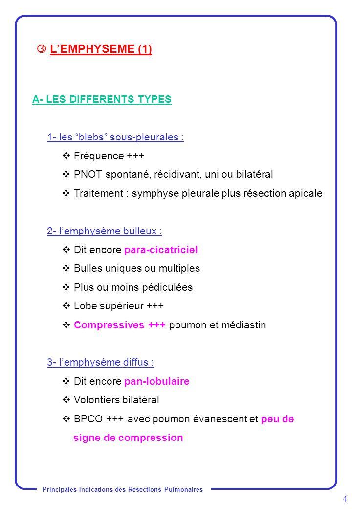 Principales Indications des Résections Pulmonaires 4 A- LES DIFFERENTS TYPES 1- les blebs sous-pleurales : Fréquence +++ PNOT spontané, récidivant, un