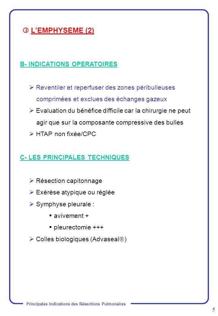 Principales Indications des Résections Pulmonaires 5 B- INDICATIONS OPERATOIRES Reventiler et reperfuser des zones péribulleuses comprimées et exclues