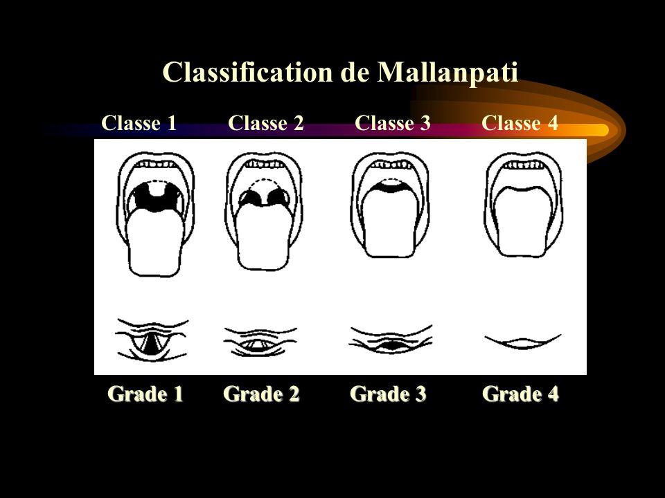 Classe 1 Classe 2 Classe 3 Classe 4 Grade 1 Grade 2 Grade 3 Grade 4 Classification de Mallanpati